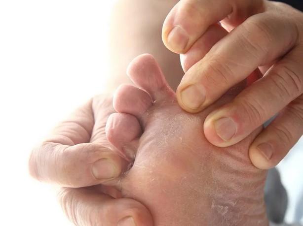 Как лечить глубокий микоз ?