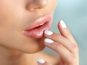 Увеличение губ. Побочные эффекты и возможные осложнения
